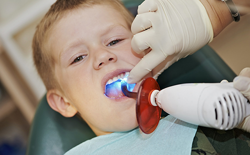 Photo of child at the dentist having a cavity filled.