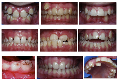 Photo of Dental Deformities