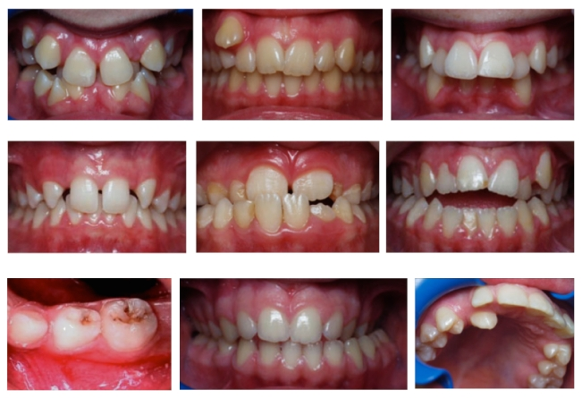 Dental Deformities