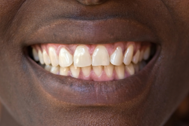 Sample teeth, well some of us are just lucky and do not need a second mortgage to fix their teeth.