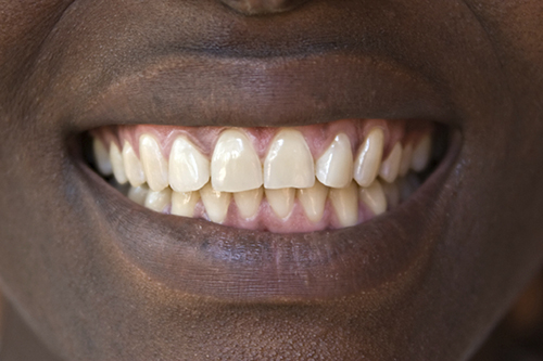 A photo of straight, natural teeth